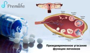 Преждевременное угасание функции яичников