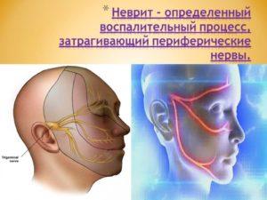 Неврит и невралгия