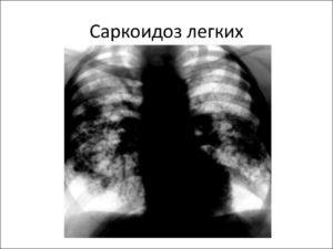 Инвалидность при саркоидозе легких.