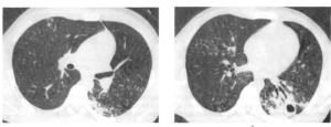 КТ-Признаки обызвествления внутригрудных лимфоузлов