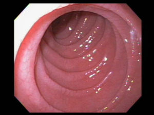 Гипотонус толстой кишки