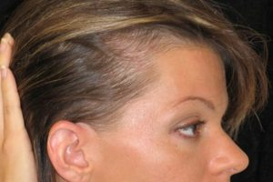 Поредение волос на висках