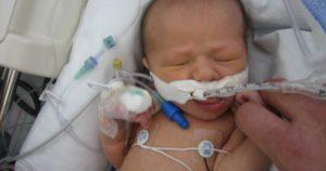 Ребенок второй раз за год болеет пневмонией