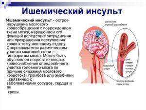 Ишемический инсульт головного мозга