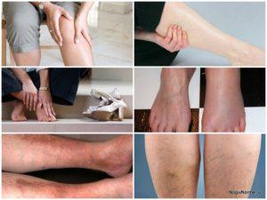 Неустойчивость на ногах