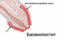 Боль при касании оголенной головки полового члена