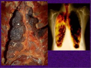 Буллезная болезнь легких