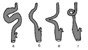 патологическая извитость ВСА, гемодинамически значимая