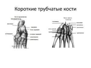Сводит кости,кости выходят из суставов.