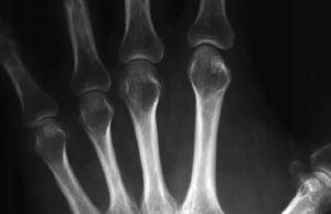 Ревматоидный артрит и остеопороз