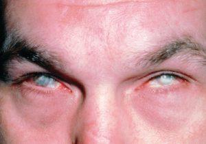 Ожоги органа зрения