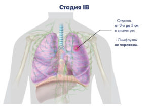 Стадии рака лёгких