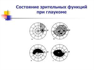 Оценка состояния зрительных функций глаза