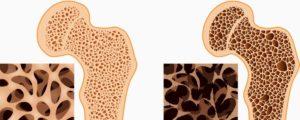 Пятнистый посттравматический остеопороз и другие осложнения