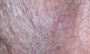 Симптоми хвороб у чоловіків - Сідниці