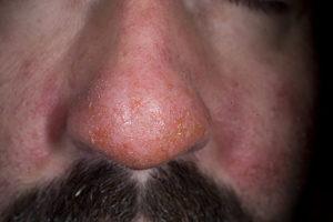 Экзема носа