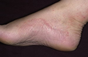 Болезни ног и стоп