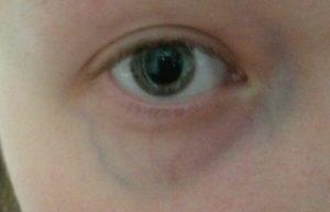Расширенная вена над глазом у ребенка