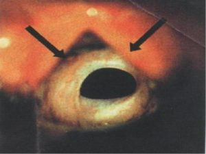 Рубцовый стеноз гортани