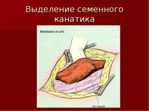 Новокаиновая блокада семенного канатика