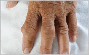 Ревматоидный артрит и повседневная жизнь