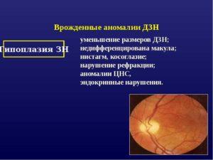 Аномалии развития диска зрительного нерва