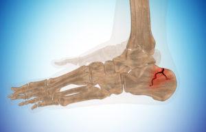 раздробление пяточной кости
