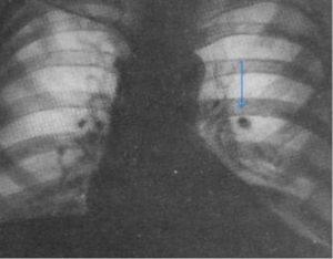 обнаружили на снимке белое круглое пятно на левом легком