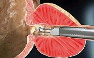 фиброзные включения по ходу простатической ypeтры