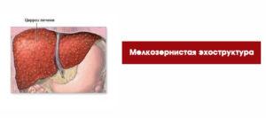 диффузионно мелкозернистая печень