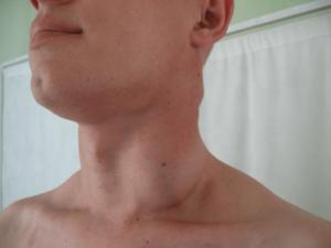 Постоянный сухой кашель, увеличенный лимфоузел