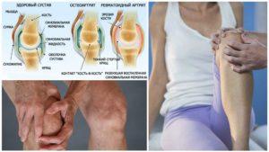 Может ли питание влиять на симптомы ревматоидного артрита?