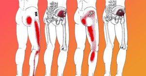 Симптомы болезни - боли в ягодице