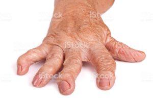 Ревматоидный артрит: сохраняйте позитивный взгляд на вещи