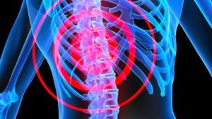 Боли, вызываемые остеопорозом