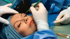 Косметические процедуры: операция на веках