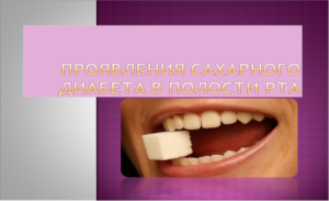 Сахарный диабет и уход за полостью рта
