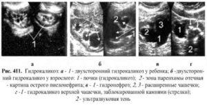 Гидрокаликоз правой почки у беременной 25 неделя беременности