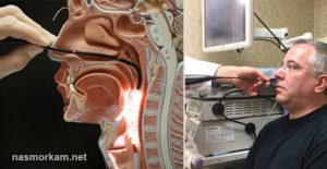 Показания и методика диагностической эндоскопии полости носа и околоносовых пазух