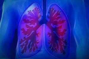 пневмония не проходит