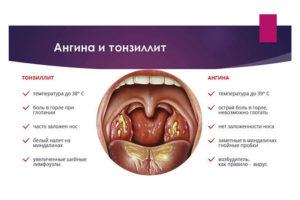 Повышенное СОЭ, тонзиллит, синусит