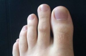 Длинный второй палец