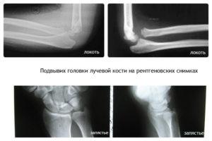 застарелый вывих головки лучевой кости последствия