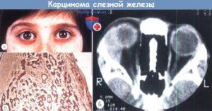Опухоли слезной железы