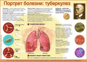 Может ли туберкулёз пройти сам, без лечения?