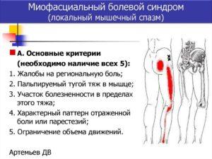 Симптомы болезни - миофасциальные боли