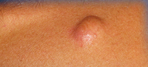 Кожные заболевания: кисты, узелки и опухоли (продолжение...)