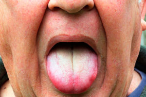 Основные заболевания языка: болезненный или обесцвеченный язык