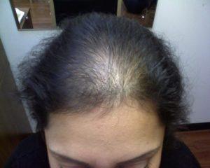 Волосы на висках растут очень плохо!