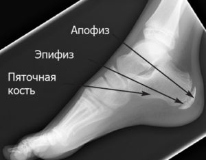 Диагностика эпифизита пяточной кости